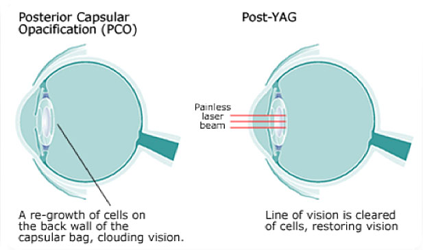 YAG Laser Post Cataract Surgery